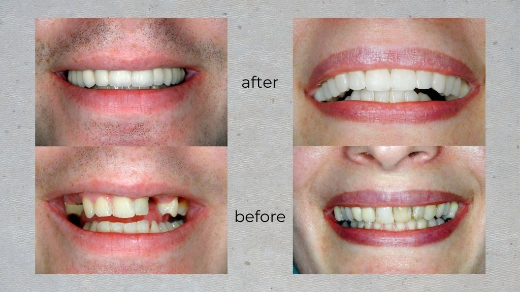 before after calgary dentist nw