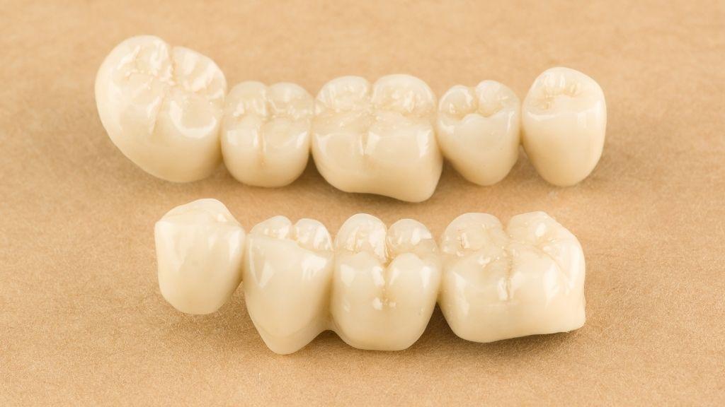 dental bridge calgary nw