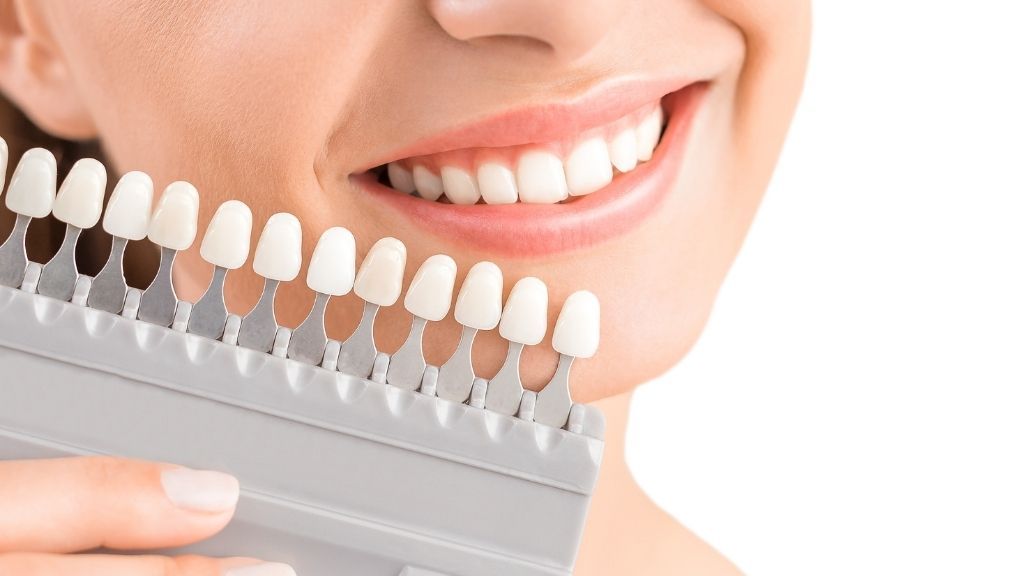 dental crowns calgary nw