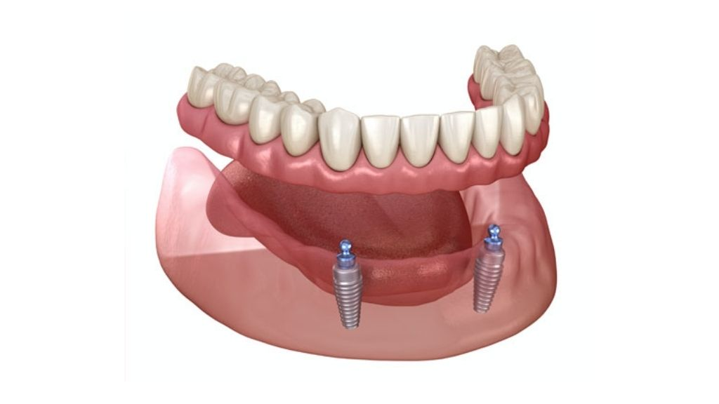 implant supported dentures calgary nw
