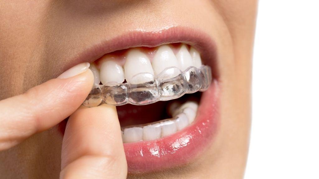 orthodontics invisalign calgary nw