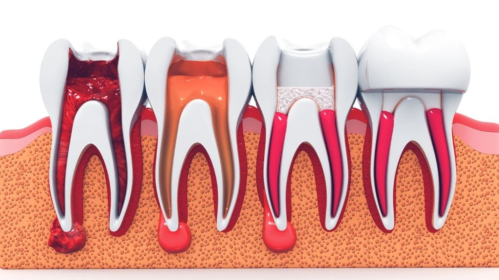 root canal calgary nw