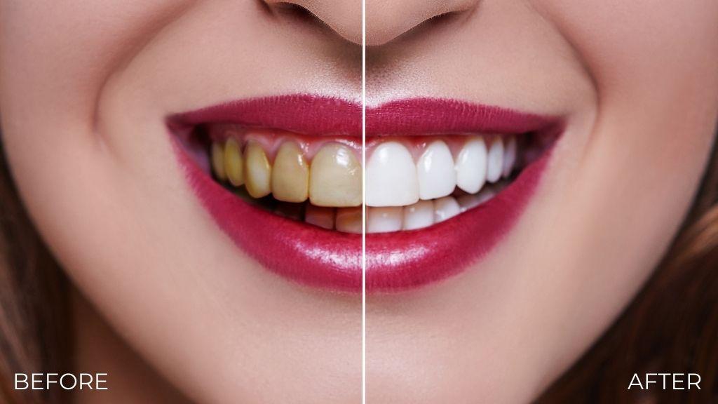 teeth whitening calgary nw