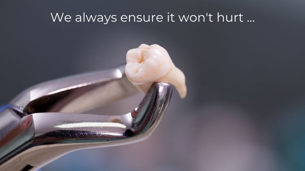 tooth removal calgary nw