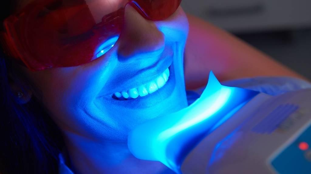 laser teeth whitening calgary nw
